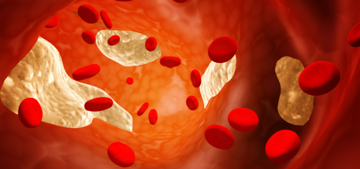 Low Cholesterol Doesn't Help Mesothelioma