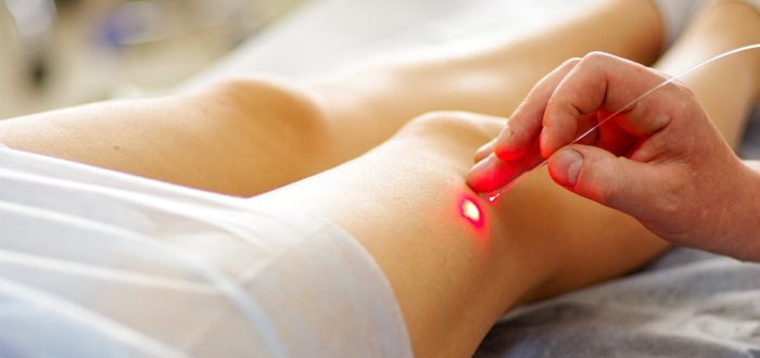 Varicose laser treatment