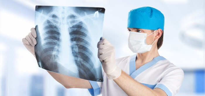 Evidence Supporting Radiation-Then-Surgery for Mesothelioma Grows