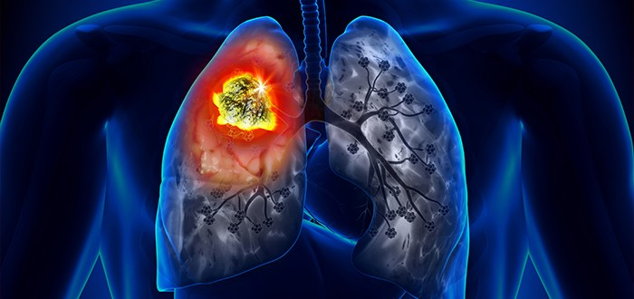 Inflamed Mesothelioma Tumors and Immune Escape