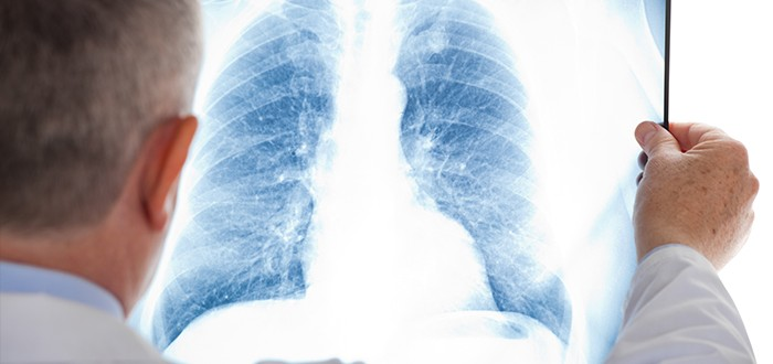 Reliable Mesothelioma Diagnosis May Be Possible Without a Biopsy