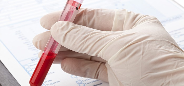 Predicting Mesothelioma Surgery Success by Analyzing Blood Sample Ratio