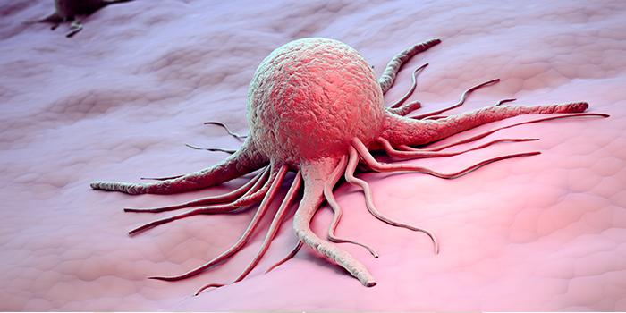 Картинки по запросу Mesothelioma Cancer
